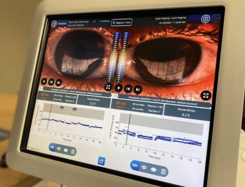 DIGNOSTICO DEL OJO SECO: LIPIVIEW TearScience